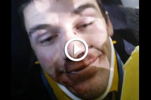 selfie juste après un accident de voiture