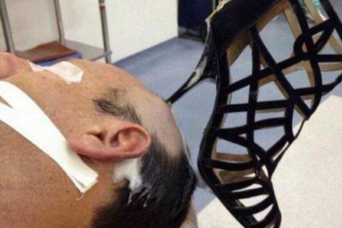 talon aiguille planté dans le crâne d'un homme